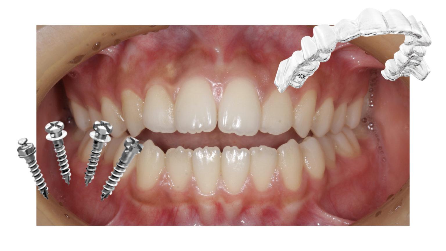 スクリュー と は アンカー アンカースクリュー矯正歯科治療